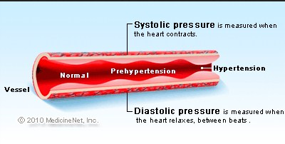 Understanding Disease High Blood Sugar